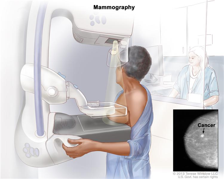 Что нужно для прохождения маммографии