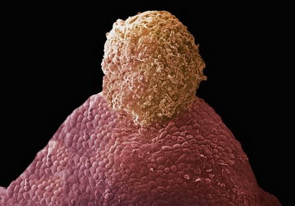 Овуляція яйцеклітини (вихід з яєчників) відбувається приблизно один раз на місяць. Фото: Yorgos Nikas/Getty Images