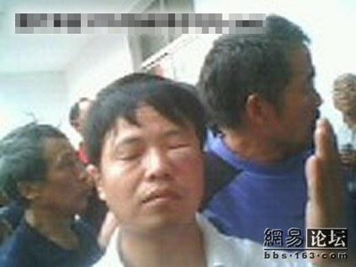 Протест місцевих жителів проти безкарності можновладців, закінчився масовим побиттям перших. Місто Цзінцзян провінції Цзянсу. Фото з epochtimes.com
