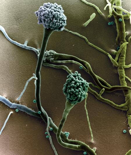 Аспергіли. Аспергілез - хвороба, що викликається різними видами плісневих грибів роду Aspergillus. Частіше протікає з переважним ураженням легенів, у людей з іммунодефіцитом приймає важкий септичний перебіг хвороби. Фото: G. Wanner/Getty Images