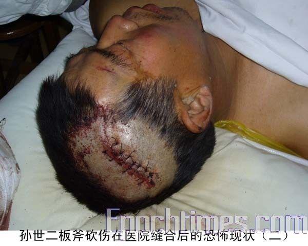 В результате нападения неизвестных, одному из братьев Сунь проломили голову. Фото: The Epoch Times