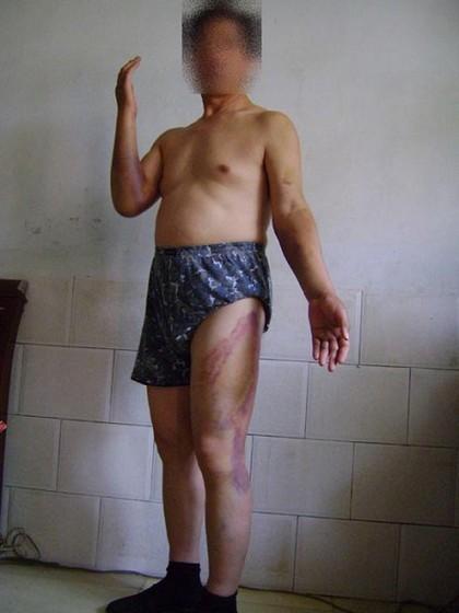 Послідовник Фалуньгун пан Чжан Чжаоюй через декілька днів після того, як його побила міліція