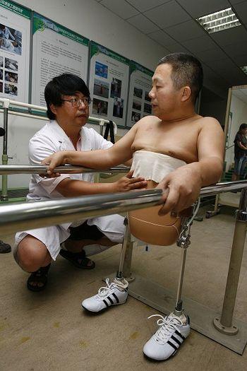 Пень Шуйліну виготовили протез за допомогою якого він може пересуватися і виглядати, як звичайна людина. Фото: China Photos/Getty Images