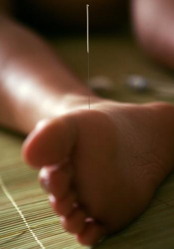 Акупунктура: развитие и становление древнейшей методики оздоровления. Фото: China Photos/Getty Images