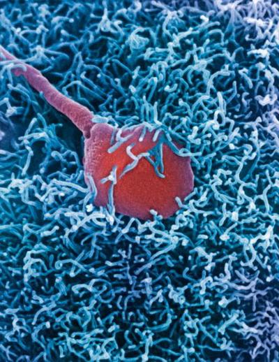 Проте лише після того, як один з них здійснить акросомальную реакцію і упровадить свій генетичний матеріал, в останніх сперматозоїдів не буде можливості проникнути всередину. Фото: Dr. David Phillips/getty Images