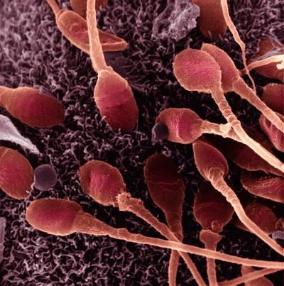Всі сперматозоїди мають однакові шанси. Фото: Dr. David Phillips/Getty Images
