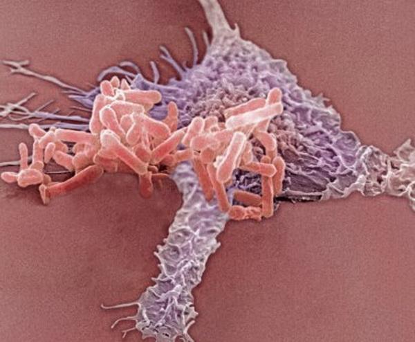 Синєгнійна паличка займає особливе місце серед збудників інфекцій сечовивідних шляхів, оскільки її збудник відрізняється природною стійкістю до більшості антимікробних препаратів, що використовуються в клініках. Фото: Tina Carvalho/Getty Images