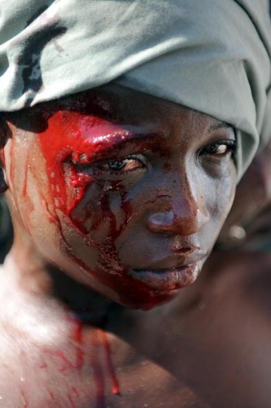 Раненый мальчик - жертва местных мародеров в Порт-о-Пренс. Полиция бессильна остановить разграбление домов, административных зданий, банков и предприятий. 21 января 2010 года. Фото Жуана БАРРЕТО / AFP / Getty Images