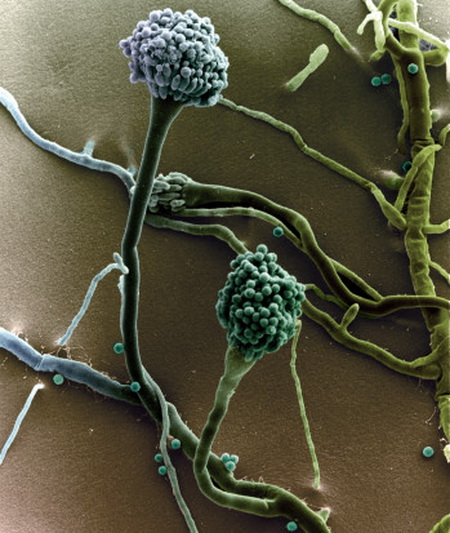 Аспергиллы. Аспергиллез - болезнь, вызываемая различными видами плесневых грибов рода Aspergillus. Чаще протекает с преимущественным поражением легких, у лиц с иммунодефицитами принимает тяжелое септическое течение. Фото: G. Wanner/Getty Images