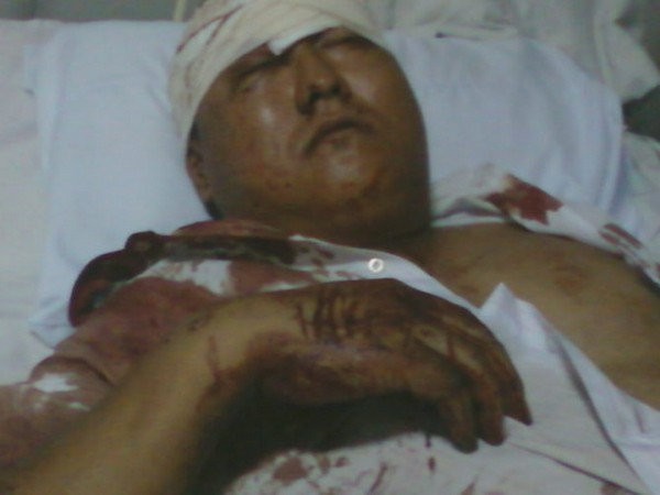 Несколько пострадавших от рук бандитов, доставлены в больницы. Фото с epochtimes.com
