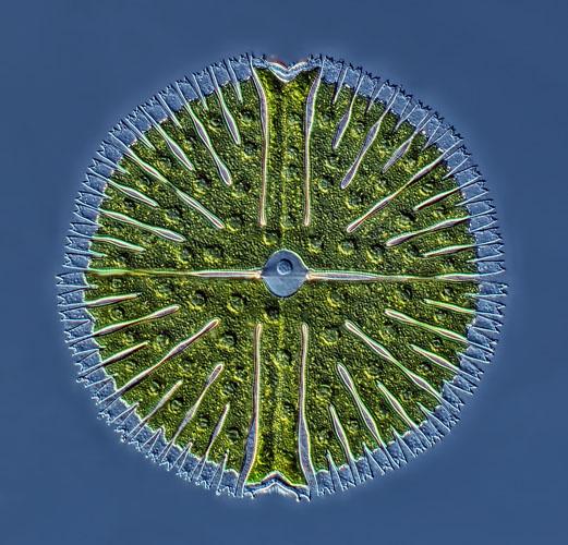 5-е місце. Одноклітинна зелена водорість Мікрастеріас, виявлена в пробі з озера. Фото складено з 22 зображень. Фото: Rogelio Moreno Gill/Panama City, Panama
