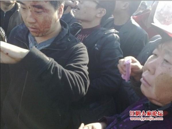 Кілька людей було побито поліцією. Провінція Цзянсу в Китаї. Грудень 2010 року. Фото з epochtimes.com