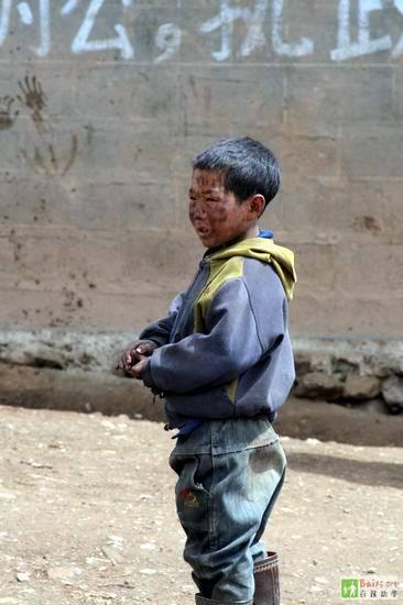 У местных жителей практически нет представления о гигиене. Дети и взрослые практически не моются. Провинция Сычуань. Фото с epochtimes.com