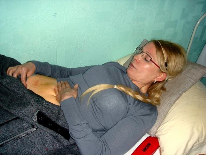 Синці Тимошенко. Фото: facebook.com/portnikov