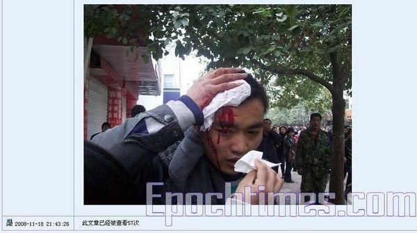 Раненый полицейскими местный житель г.Луннань. Фото: The Epoch Times