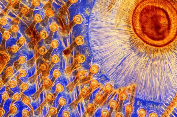 Присоски на суглобі передньої лапки чоловічої особини жука-плавунця Dytiscus marginalis. Ці присоски дають змогу самцю прикріпитися до самки під час спарювання. Фото: life.pravda.com.ua