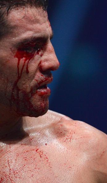 Віталій Кличко - Мануеля Чарра Фото: Lars Baron /Getty Images Sport
