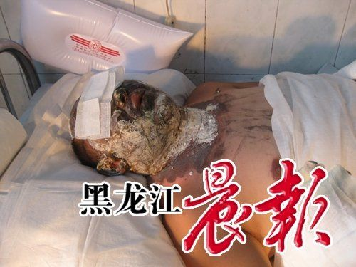 Після спроби самоспалення у чоловіка сильно обгоріло обличчя, але небезпеки для життя немає. Фото з aboluowang.com