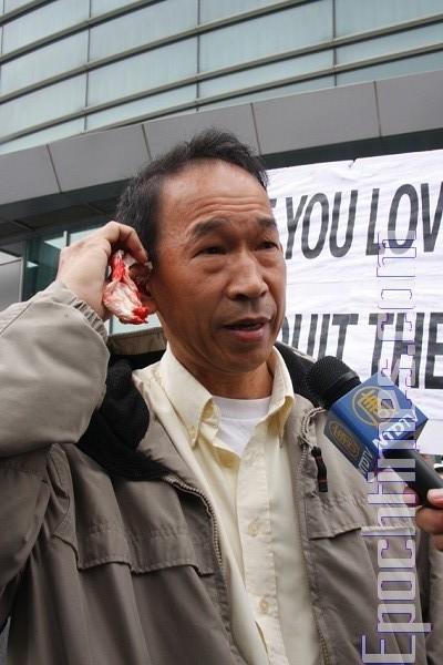 Г-н Юй Вэнчжун рассказывает репортёрам о совершённом на него нападении. Фото: Dayin Chen/ The Epoch Times