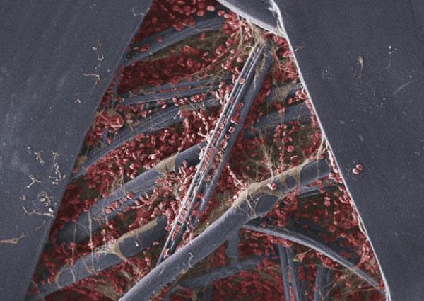 Пластырь после того, как им заклеивали порез. Эритроциты застряли в фибрине, протеине, который принимает участие в свертывании крови, между марлевыми волокнами пластыря. Фото: life.pravda.com.ua