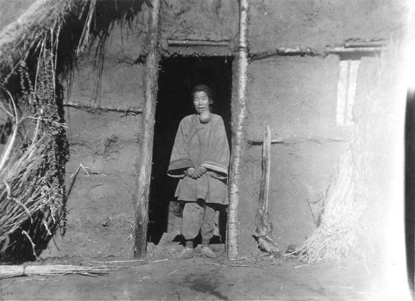 Жінка з великої пухлиною на шиї. Фото: Китай часів династії Цін. Фото: William Purdom
