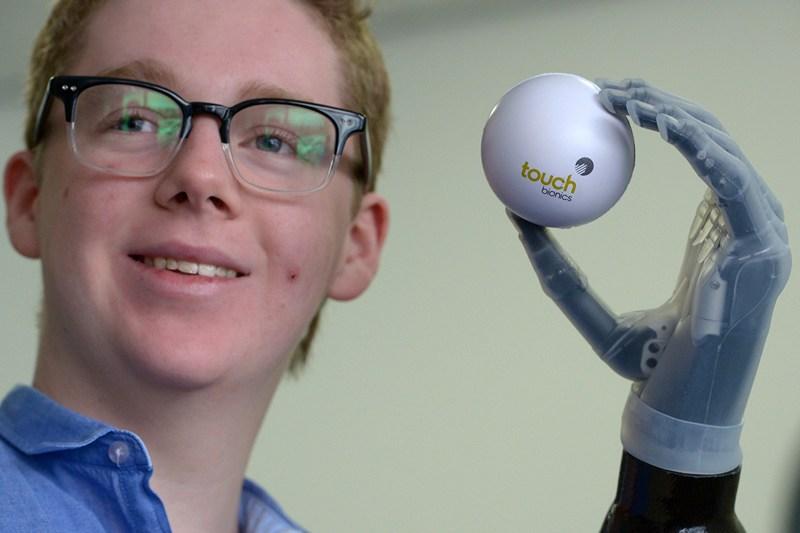 Лівінгстон, Шотландія, 23 квітня. 13-річний Патрік Кейн став наймолодшим пацієнтом, який отримав біонічний протез від фірми «Touch Bionics». Штучна рука дозволяє відчувати те, чого торкається її власник. Фото: Jeff J Mitchell/Getty Images