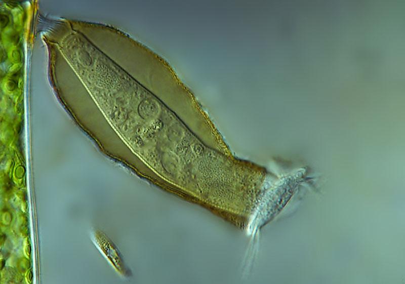 Кругловійчаста інфузорія Pyxicola. Фото: Jacek Myslowski/Wloclawek, Poland