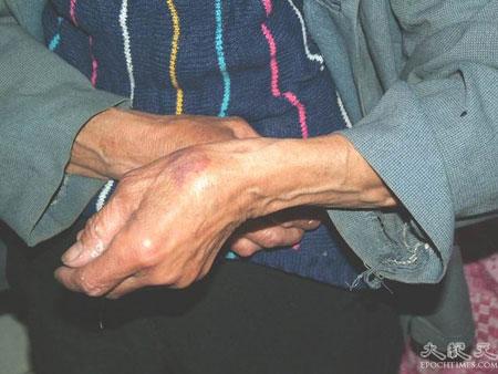 Мать Сюэ Сянбяо Дон Юйлан толкнули на пол. Фото: Великая Эпоха