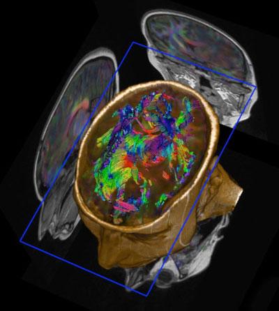 Нейронні шляхи в мозку 45-річного чоловіка, вид згори. Фото: life.pravda.com.ua