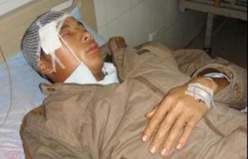 Крестьянин, раненый в результате столкновения с полицией. Фото: boxun.com