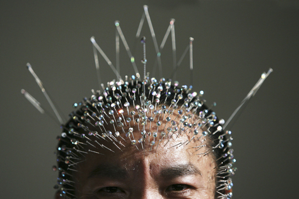 Традиційно батьківщиною акупунктури вважається Китай. Фото: China Photos / Getty Images