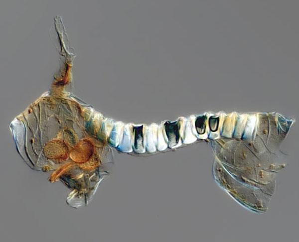 Спора папороті (збільшення у 20 разів). Фото зроблено у Вістарівському інституті у Філадельфії, США