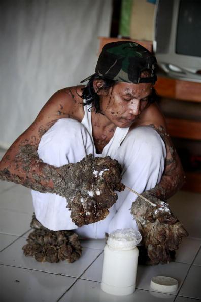 Индонезиец, известный как человек-дерево лечит бородавки, которые распространились больше всего на его руках и ногах. Фото: Ulet Ifansasti/Getty Images