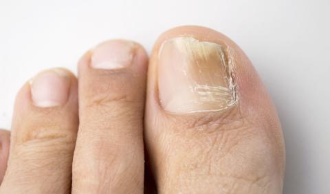 Магния сульфат для лечения грибка ногтей