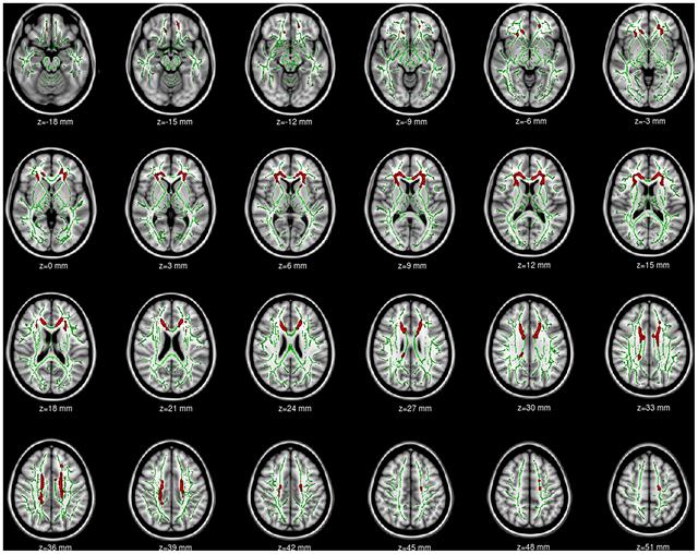 Образование областей с нарушениями связи (красный цвет) в коре головного мозга у страдающих интернет-зависимостью. Фото: plosone.org